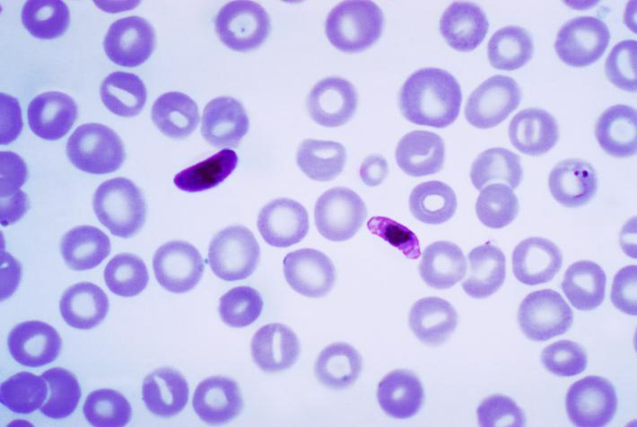 Původce malárie Plasmodium falciparum. Kredit: CDC/Mae Melvin