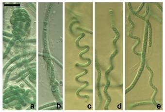 Jeden z nově popsaných druhů – sinice Pegethrix bostrychoides. Kredit: Mai et al. (2018) Phytotaxa.