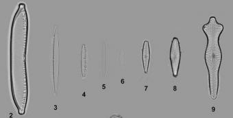 Některé z kmenů rozsivek zařazených do studie. Kredit: Hejduková et al. (2019).